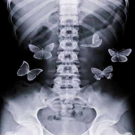 mariposas_en_el_estomago.jpg